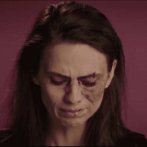 【傷害一個人,要花多久?】所受的傷害不僅僅是臉上的瘀傷